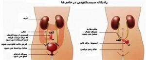 استفاده-از-روده-در-diversion-ادراری-Urinary-diversion-using-the-intestine.-300x125