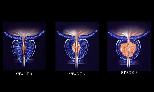 تشخیص بزرگ شدگی پروستات به چه شکل است