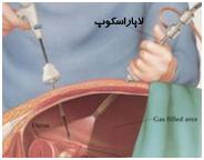 جراحي ميني لاپاراسكوپي