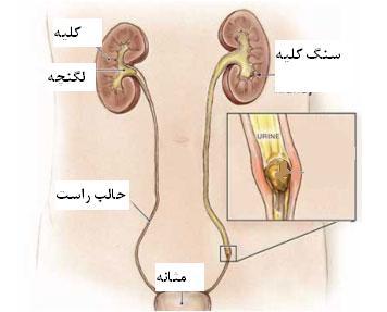 Ureter stone 1