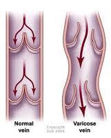 Varicocele surgery جراحی واريكوسل