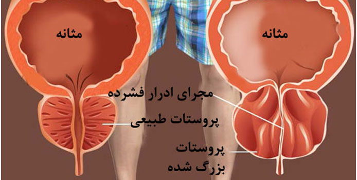 bozorgiprostat111