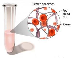 hemospermia-1z1v7f8-300x240