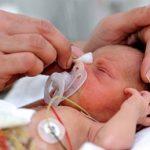 انواع ناهنجاریهای مادرزادی کلیه