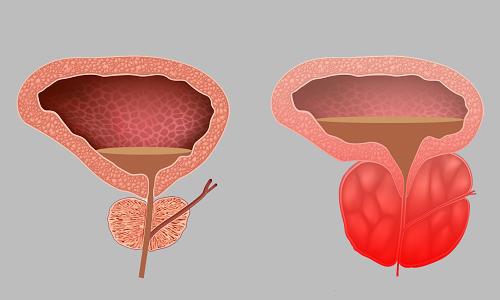 بزرگ شدن غده پروستات