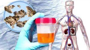 درمان انسداد مجاری ادراری ناشی از سنگ، تومور و عفونت