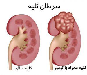 سرطان (تومور) کلیه