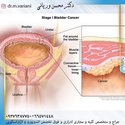 سرطان مثانه را جدی بگیرید