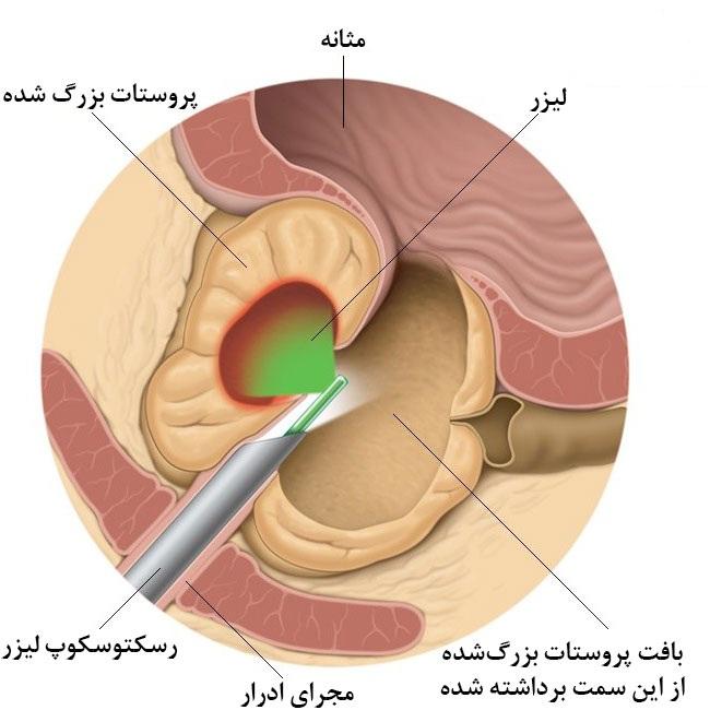 لیزر درمانی برای درمان بزرگی پروستات