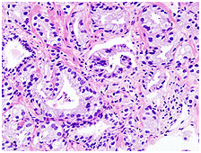عوامل تاثیرگذار بر سرطان پروستات