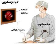 جراحي لاپاروسكوپي يعني چه