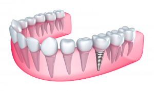 bigstock-Dental-implant-in-the-gum-Is-39560938