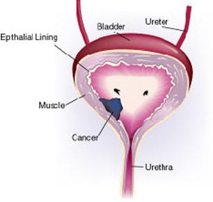 bladder-cancer-3