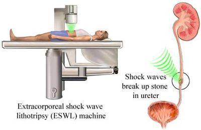سنگ شکنی برون اندامی یا ESWL